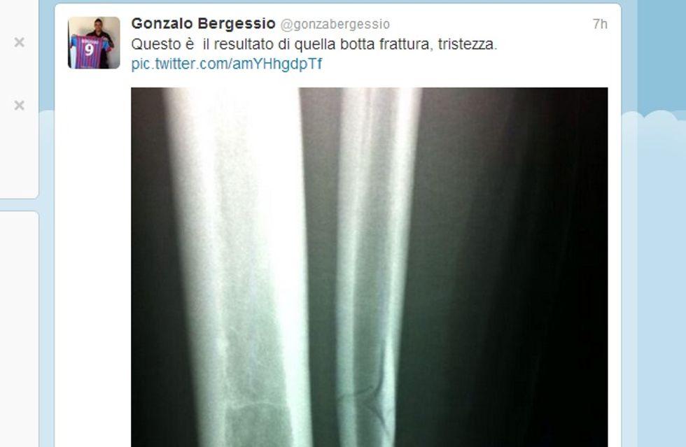 Bergessio-choc: gamba rotta e lastra su Twitter