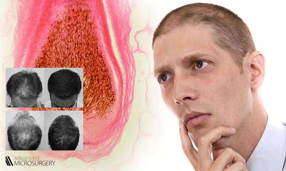 Caduta capelli e diradamento: la cura definitiva della calvizie è possibile?