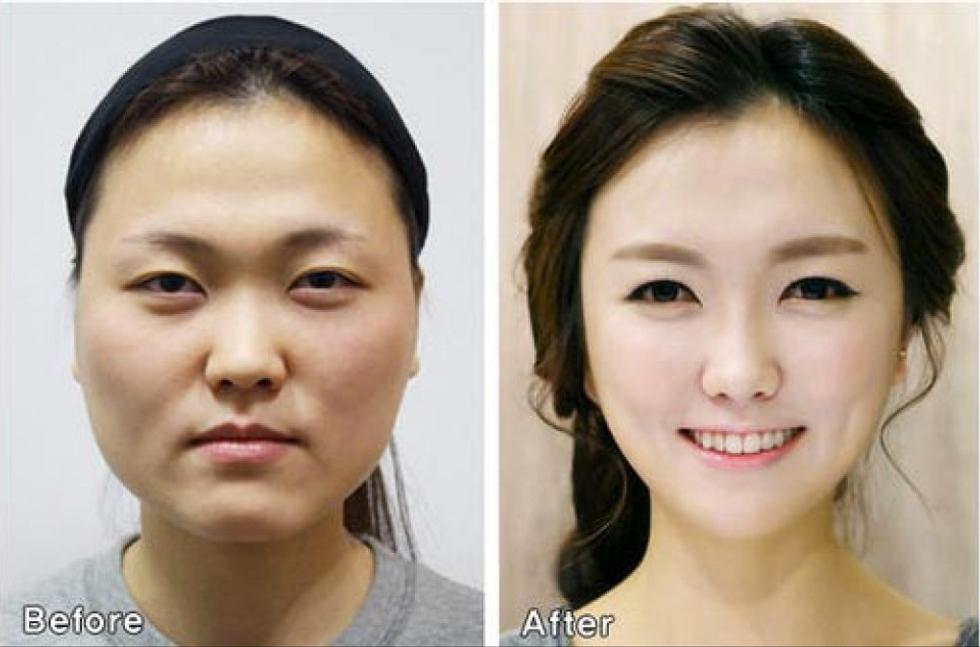 I miracoli estetici dei chirurghi sudcoreani