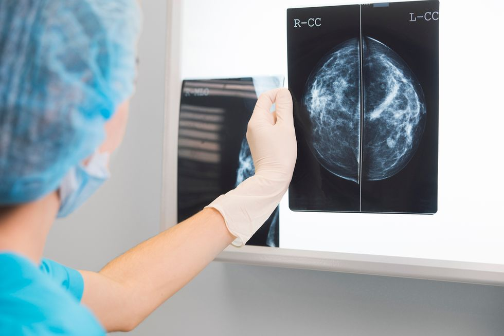 tumore-al-seno-metastatico