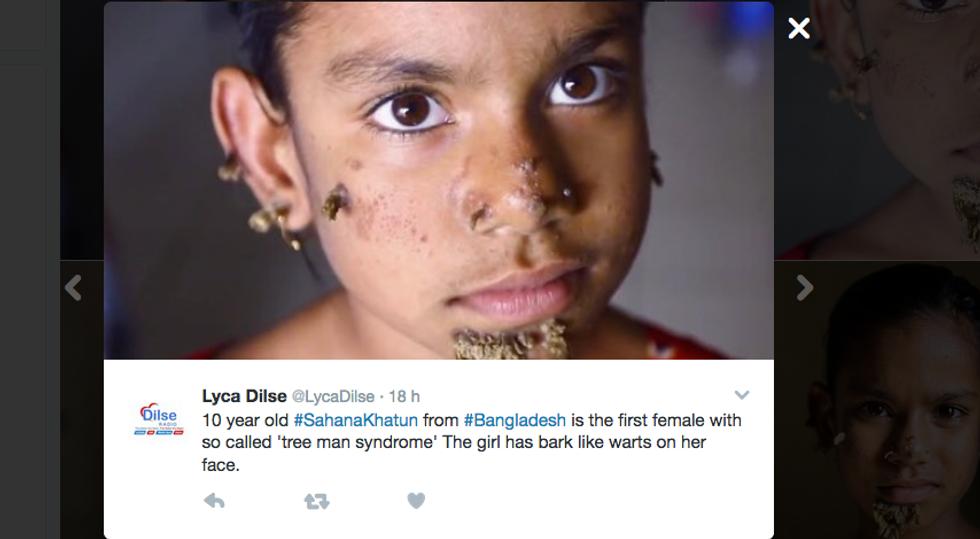 Sahana Khatun, la bimba affetta dalla sindrome dell'uomo albero