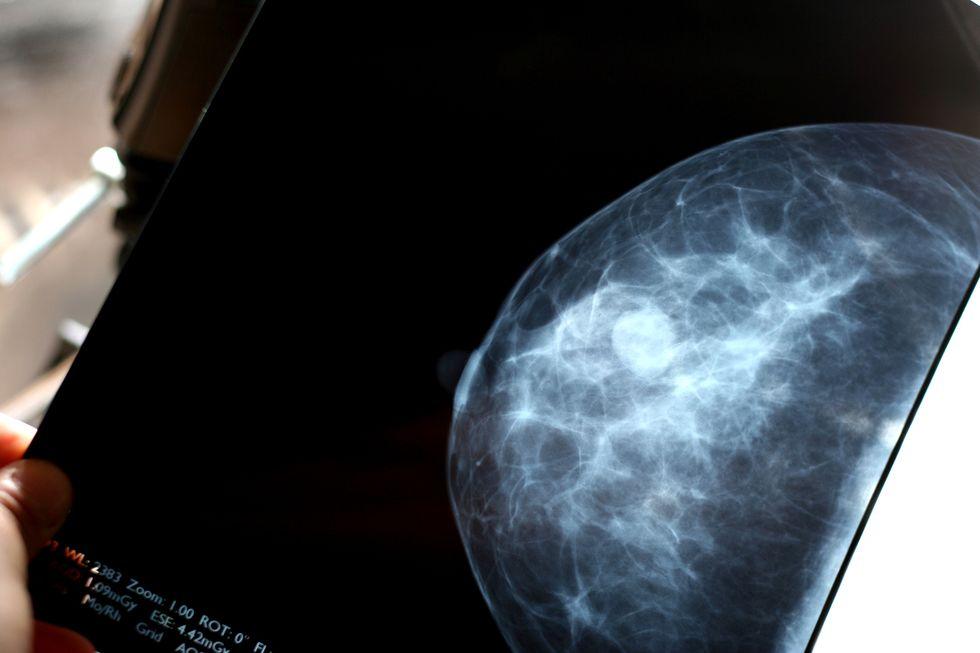 Tumore al seno: le nuove scoperte sul rischio genetico