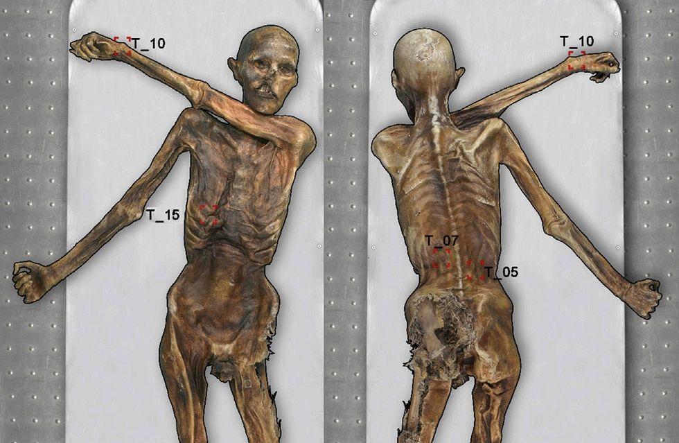 I tatuaggi della Mummia dei Ghiacci: possibili segni di agopuntura