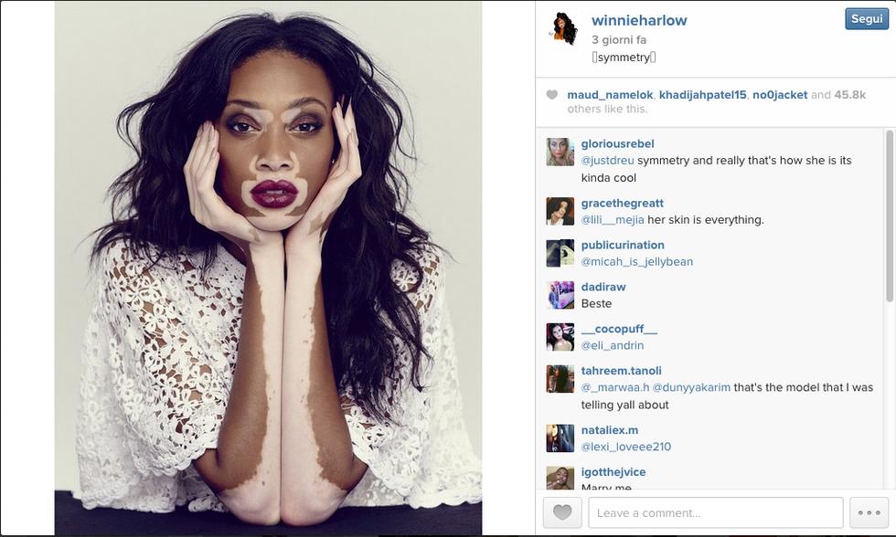 Chantelle Winnie, la modella con la vitiligine che ha conquistato le passerelle