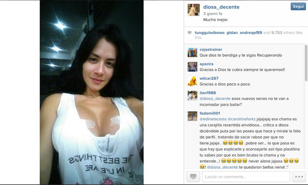 Alla Kim Kardashian venezuelana esplode il seno durante uno spettacolo