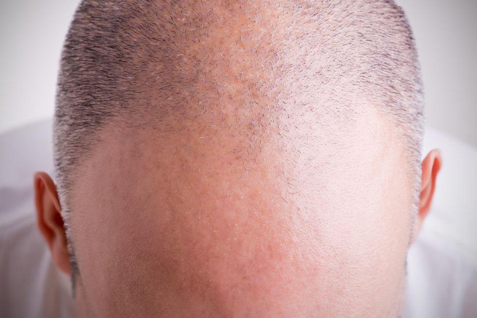 Calvizie: scoperti principi attivi che fanno ricrescere i capelli rapidamente