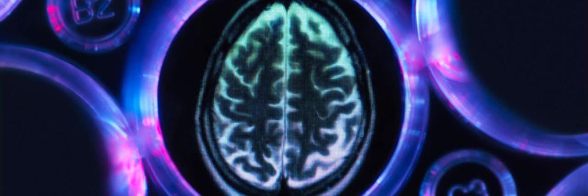 Ben 20.000 esperimenti contro l'Alzheimer, tutti fatti dallo stesso scienziato (italiano)