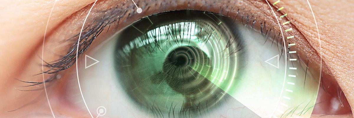 occhio vista