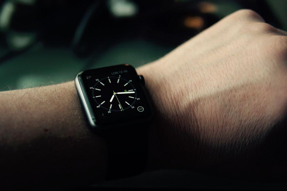 Apple Watch: 5 cose che non può fare